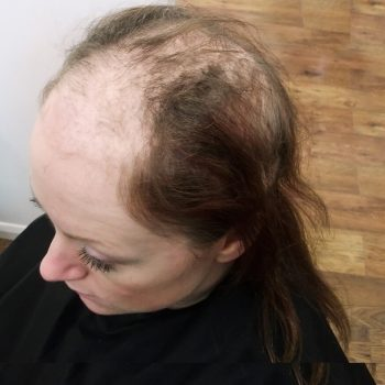 female client shows bare pacthes caused by trichotillomania