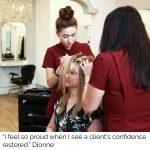 team transforming clients hair loss