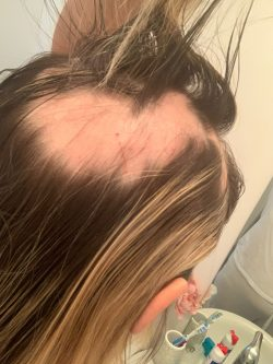 Female with bald patches and hair loss during covid pandemic